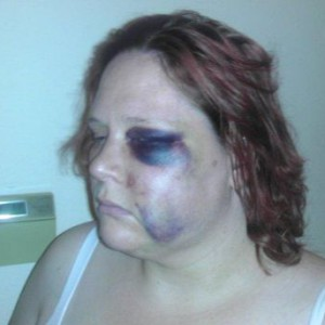 Disabled Woman Attacked By Cop Calls 911 For Help