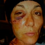 Graphic: Illinois Woman Sues Local Police For Excessive Force After Cops Refuse To Discipline Their Own