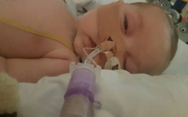 Charlie Gard is the face of socialized medicine - Personal ...